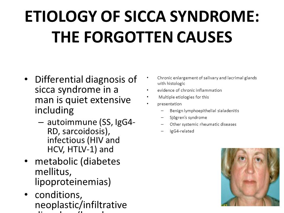 ETIOLOGY OF SICCA SYNDROME: THE FORGOTTEN CAUSES Differential diagnosis of sicca syndrome in a man is quiet extensive including – autoimmune (SS, IgG4- RD, sarcoidosis), infectious (HIV and HCV, HTLV-1) and metabolic (diabetes mellitus, lipoproteinemias) conditions, neoplastic/infiltrative disorders (lymphoma, tumors, amyloidosis), drug side effects (anticholinergic and antidepressant), and head and neck irradiation Chronic enlargement of salivary and lacrimal glands with histologic evidence of chronic inflammation Multiple etiologies for this presentation – Benign lymphoepithelial sialadenitis – Sjögren's syndrome – Other systemic rheumatic diseases – IgG4‐related