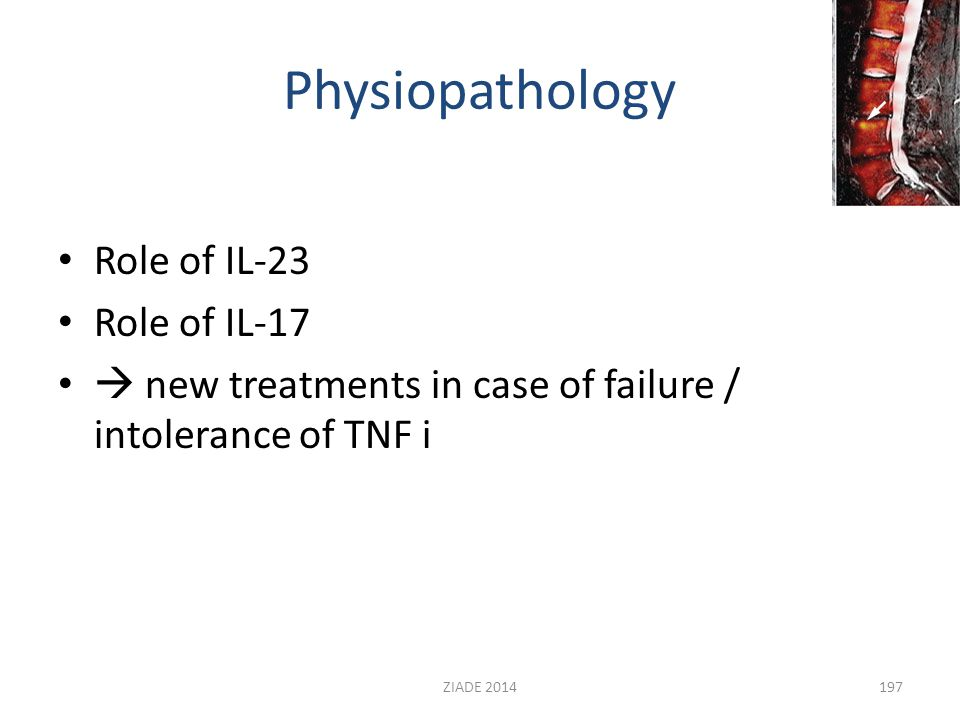 Physiopathology Role of IL-23 Role of IL-17  new treatments in case of failure / intolerance of TNF i 197ZIADE 2014