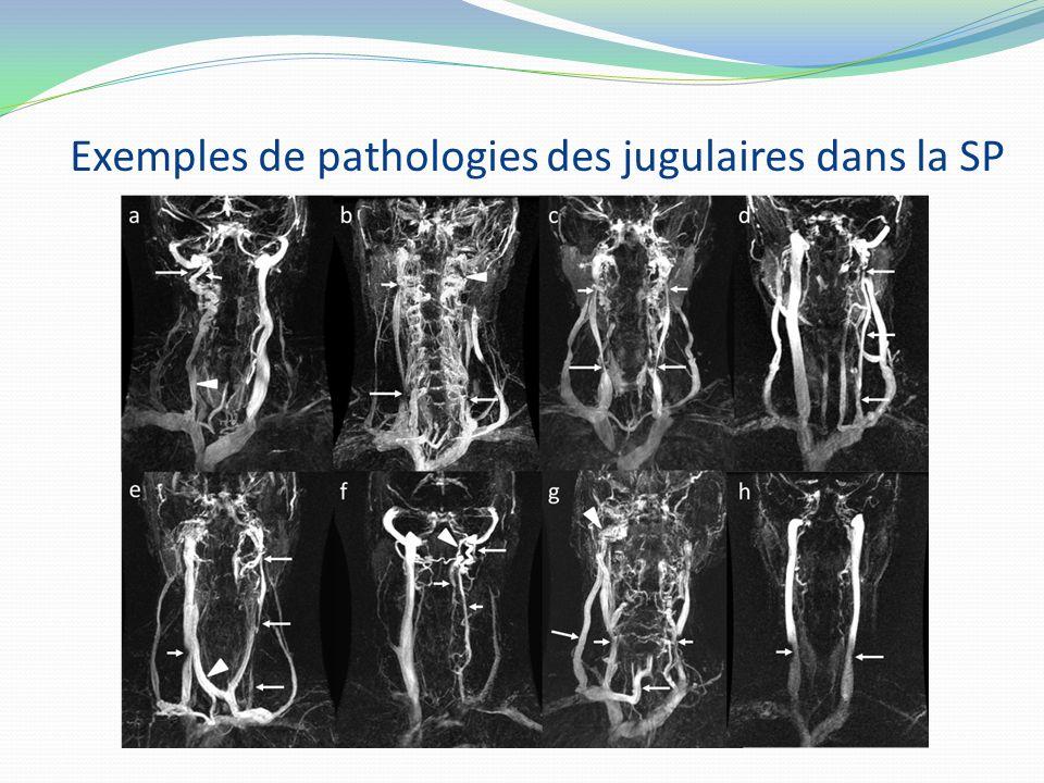 Exemples de pathologies des jugulaires dans la SP