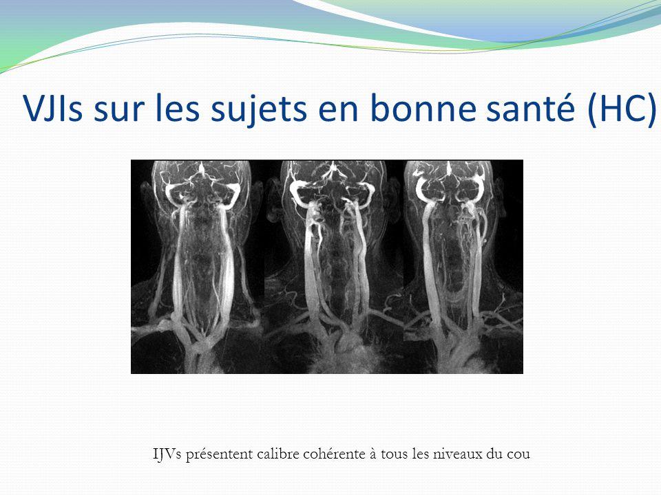 VJIs sur les sujets en bonne santé (HC) IJVs présentent calibre cohérente à tous les niveaux du cou