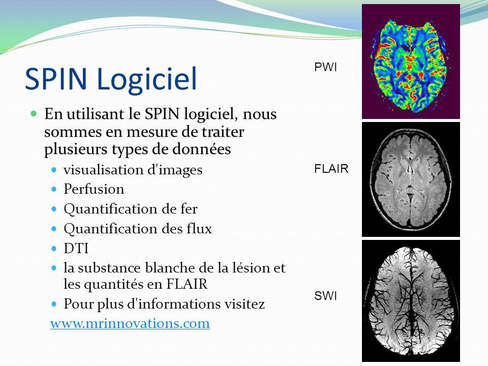 SPIN Logiciel En utilisant le SPIN logiciel, nous sommes en mesure de traiter plusieurs types de données visualisation d images Perfusion Quantification de fer Quantification des flux DTI la substance blanche de la lésion et les quantités en FLAIR Pour plus d informations visitez www.mrinnovations.com PWI FLAIR SWI