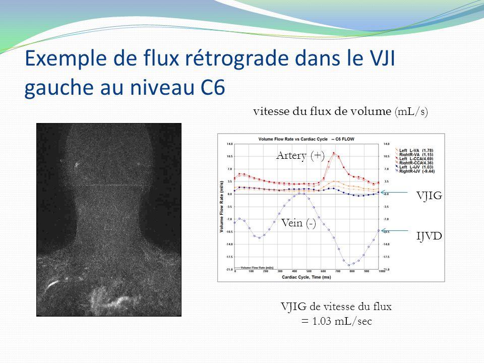 vitesse du flux de volume (mL/s) Exemple de flux rétrograde dans le VJI gauche au niveau C6 VJIG de vitesse du flux = 1.03 mL/sec LIJV Artery (+) Vein (-) IJVD VJIG