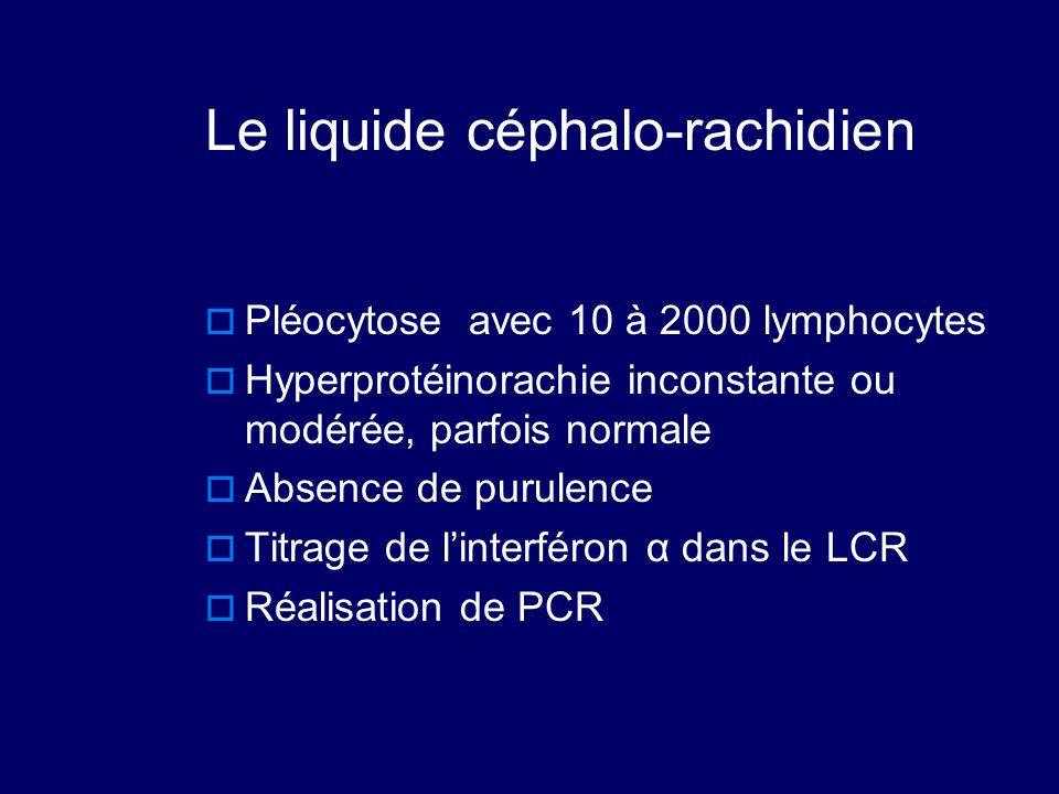 Le liquide céphalo-rachidien  Pléocytose avec 10 à 2000 lymphocytes  Hyperprotéinorachie inconstante ou modérée, parfois normale  Absence de purule