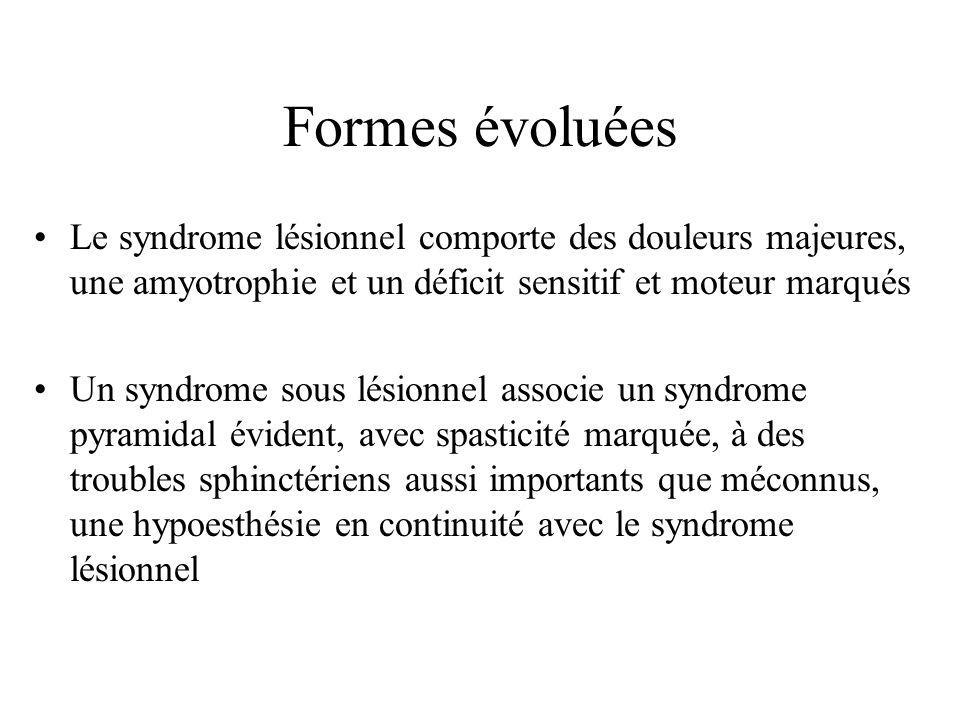 Formes évoluées Le syndrome lésionnel comporte des douleurs majeures, une amyotrophie et un déficit sensitif et moteur marqués Un syndrome sous lésion