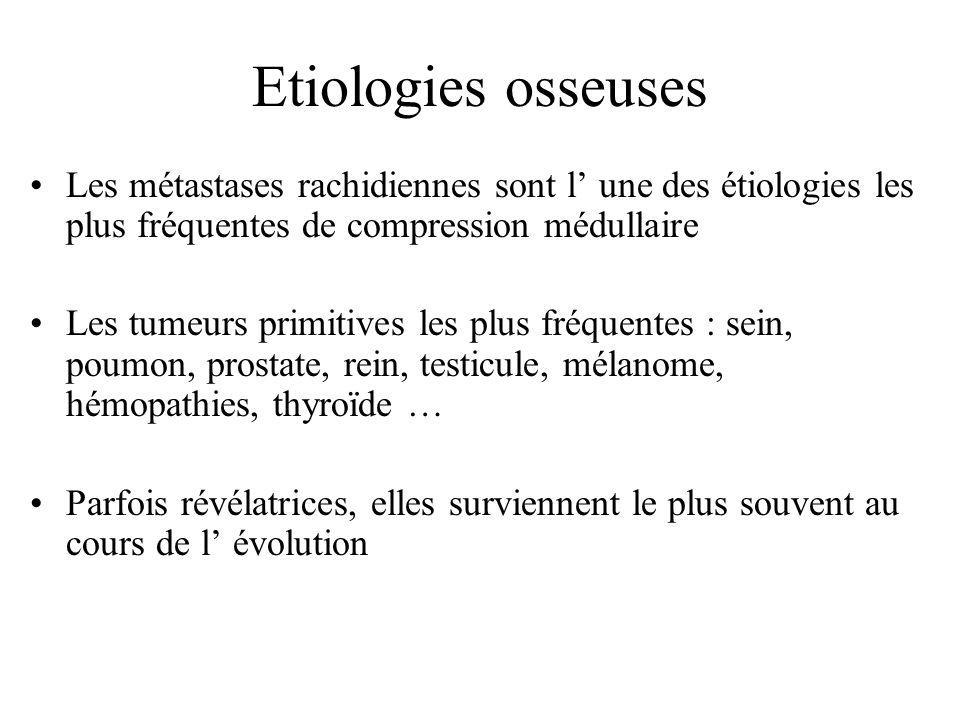 Etiologies osseuses Les métastases rachidiennes sont l' une des étiologies les plus fréquentes de compression médullaire Les tumeurs primitives les pl