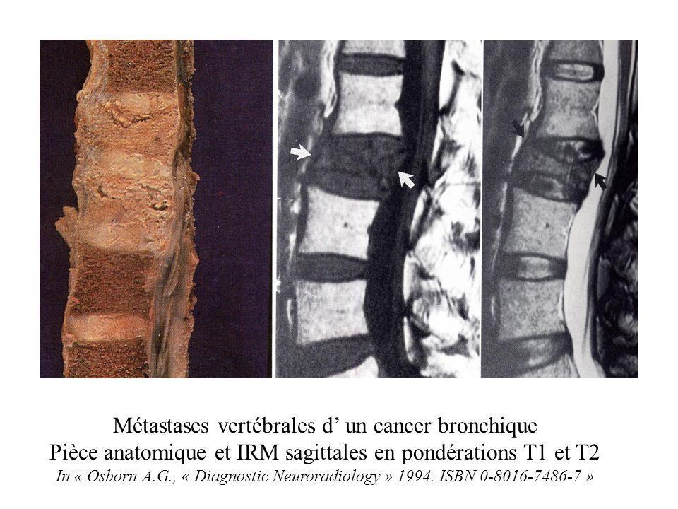 Métastases vertébrales d' un cancer bronchique Pièce anatomique et IRM sagittales en pondérations T1 et T2 In « Osborn A.G., « Diagnostic Neuroradiolo