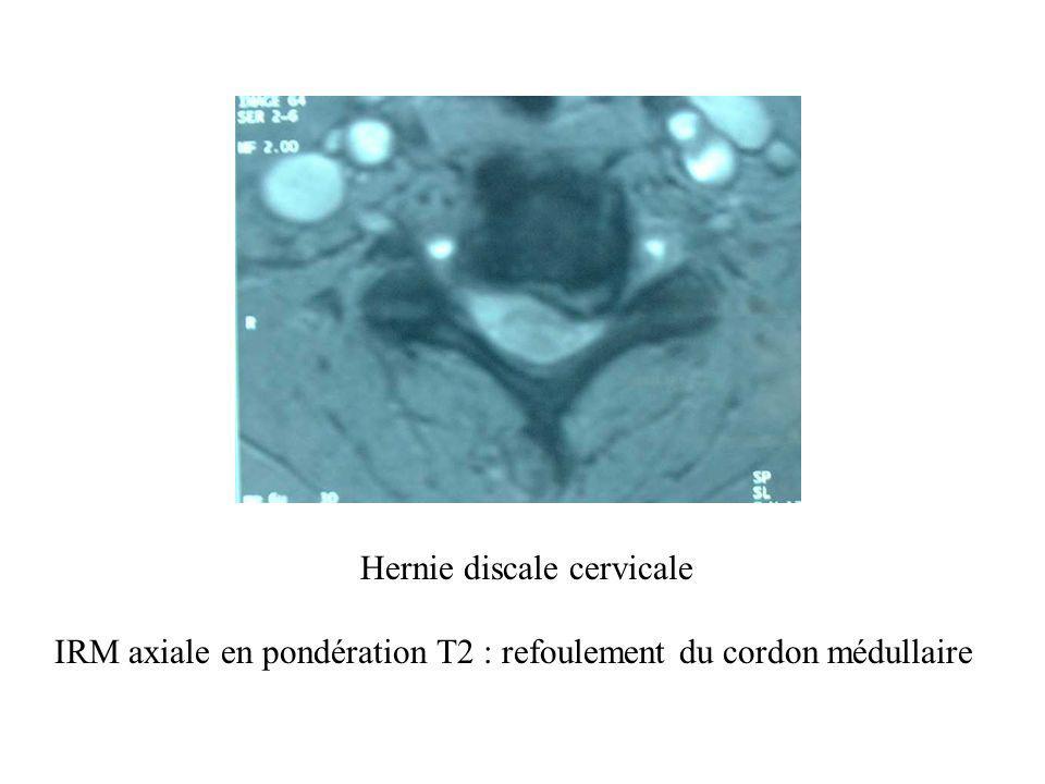 Hernie discale cervicale IRM axiale en pondération T2 : refoulement du cordon médullaire
