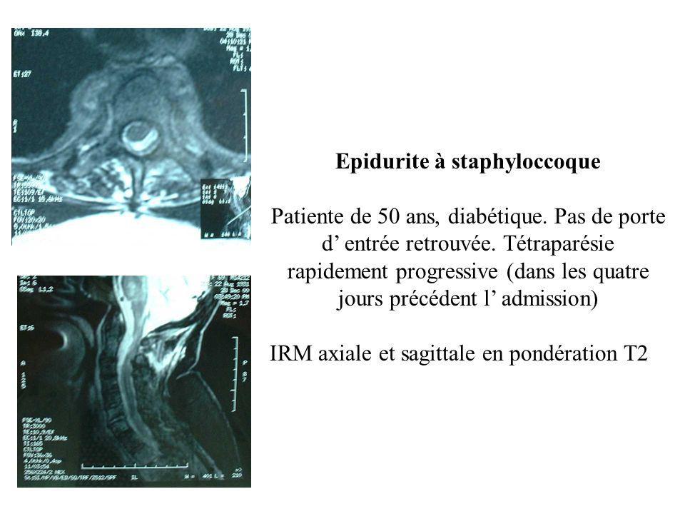 Epidurite à staphyloccoque Patiente de 50 ans, diabétique. Pas de porte d' entrée retrouvée. Tétraparésie rapidement progressive (dans les quatre jour