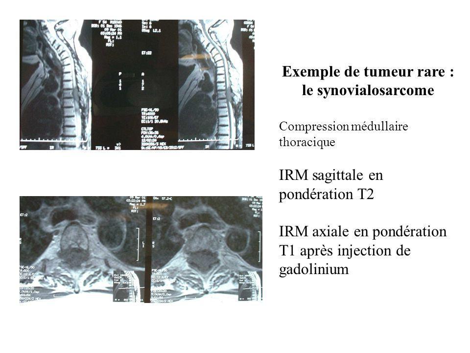 Exemple de tumeur rare : le synovialosarcome Compression médullaire thoracique IRM sagittale en pondération T2 IRM axiale en pondération T1 après inje