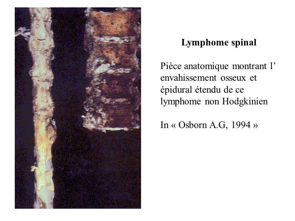 Lymphome spinal Pièce anatomique montrant l' envahissement osseux et épidural étendu de ce lymphome non Hodgkinien In « Osborn A.G, 1994 »
