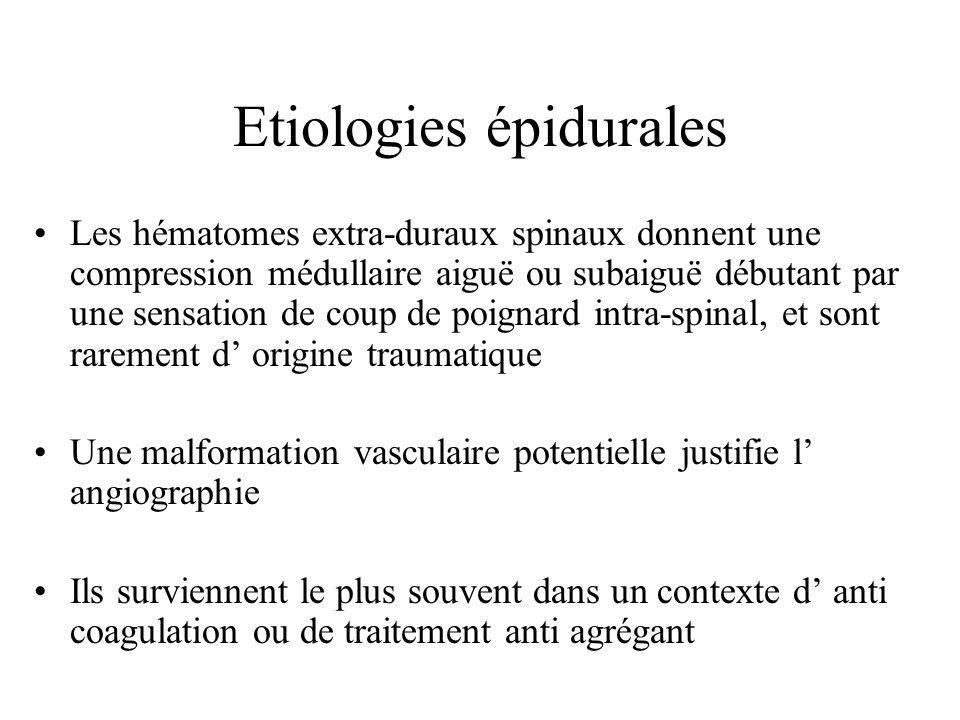 Etiologies épidurales Les hématomes extra-duraux spinaux donnent une compression médullaire aiguë ou subaiguë débutant par une sensation de coup de po