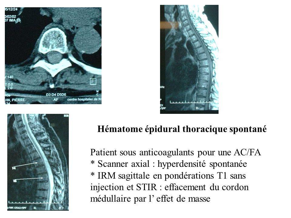 Hématome épidural thoracique spontané Patient sous anticoagulants pour une AC/FA * Scanner axial : hyperdensité spontanée * IRM sagittale en pondérati