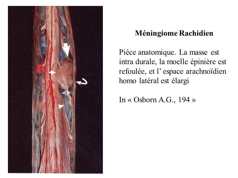 Méningiome Rachidien Pièce anatomique. La masse est intra durale, la moelle épinière est refoulée, et l' espace arachnoïdien homo latéral est élargi I