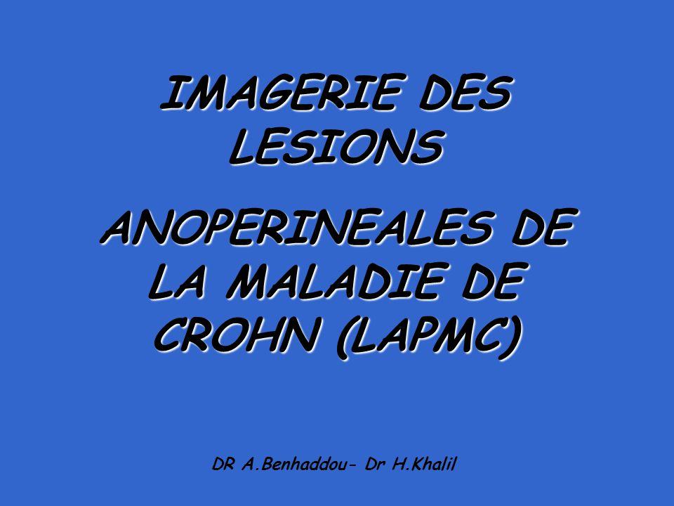 IMAGERIE DES LESIONS ANOPERINEALES DE LA MALADIE DE CROHN (LAPMC) DR A.Benhaddou- Dr H.Khalil