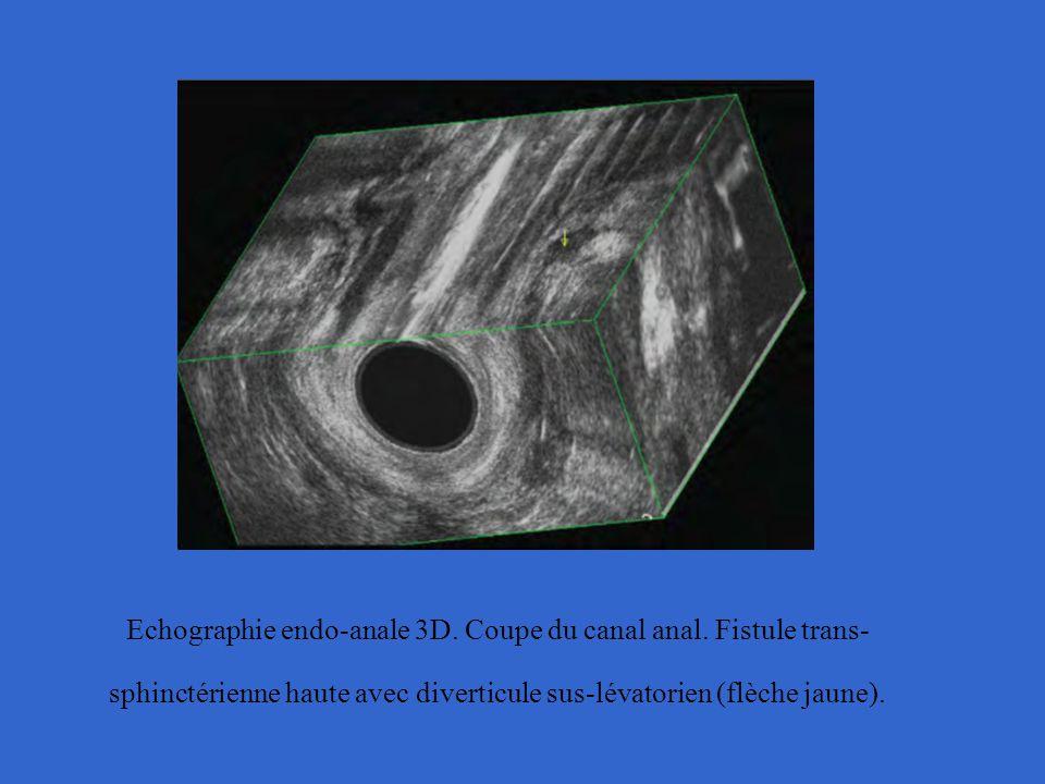 Echographie endo-anale 3D. Coupe du canal anal. Fistule trans- sphinctérienne haute avec diverticule sus-lévatorien (flèche jaune).
