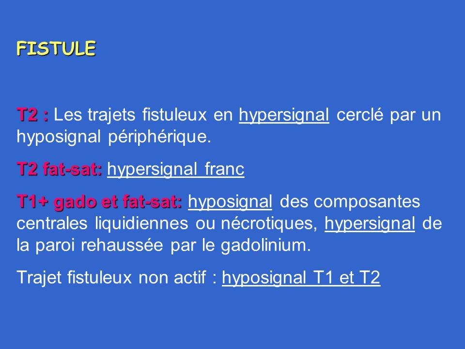 FISTULE T2 : T2 : Les trajets fistuleux en hypersignal cerclé par un hyposignal périphérique. T2 fat-sat: T2 fat-sat: hypersignal franc T1+ gado et fa