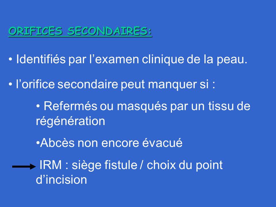 ORIFICES SECONDAIRES: Identifiés par l'examen clinique de la peau. l'orifice secondaire peut manquer si : Refermés ou masqués par un tissu de régénéra