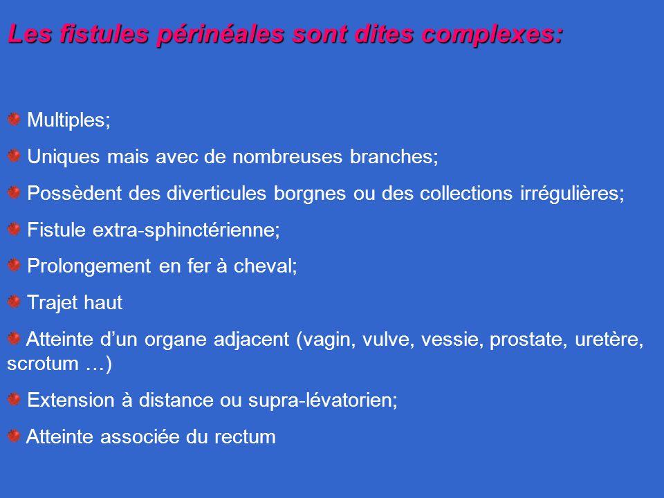 Les fistules périnéales sont dites complexes: Multiples; Uniques mais avec de nombreuses branches; Possèdent des diverticules borgnes ou des collectio