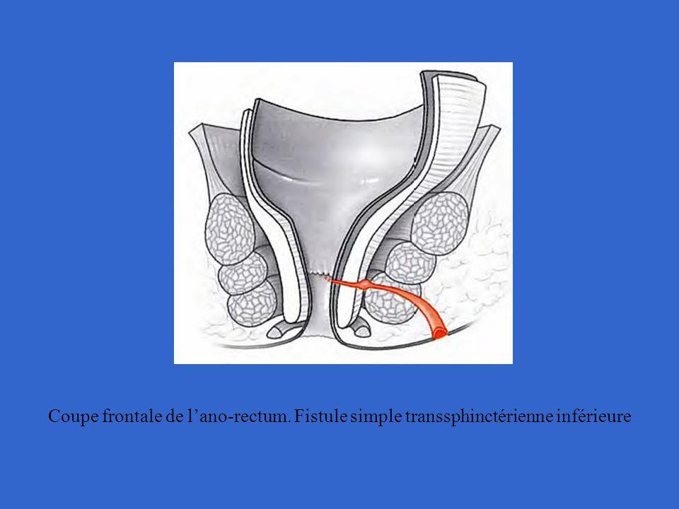 Coupe frontale de l'ano-rectum. Fistule simple transsphinctérienne inférieure