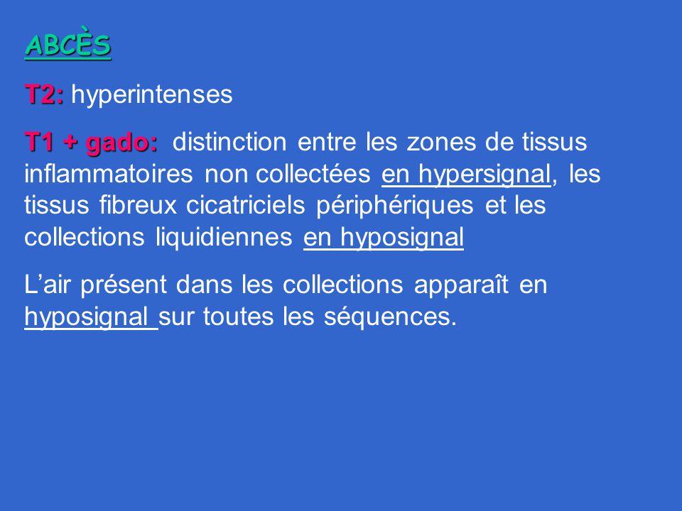 ABCÈS T2: T2: hyperintenses T1 + gado: T1 + gado: distinction entre les zones de tissus inflammatoires non collectées en hypersignal, les tissus fibre