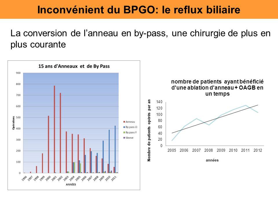 La conversion de l'anneau en by-pass, une chirurgie de plus en plus courante Inconvénient du BPGO: le reflux biliaire
