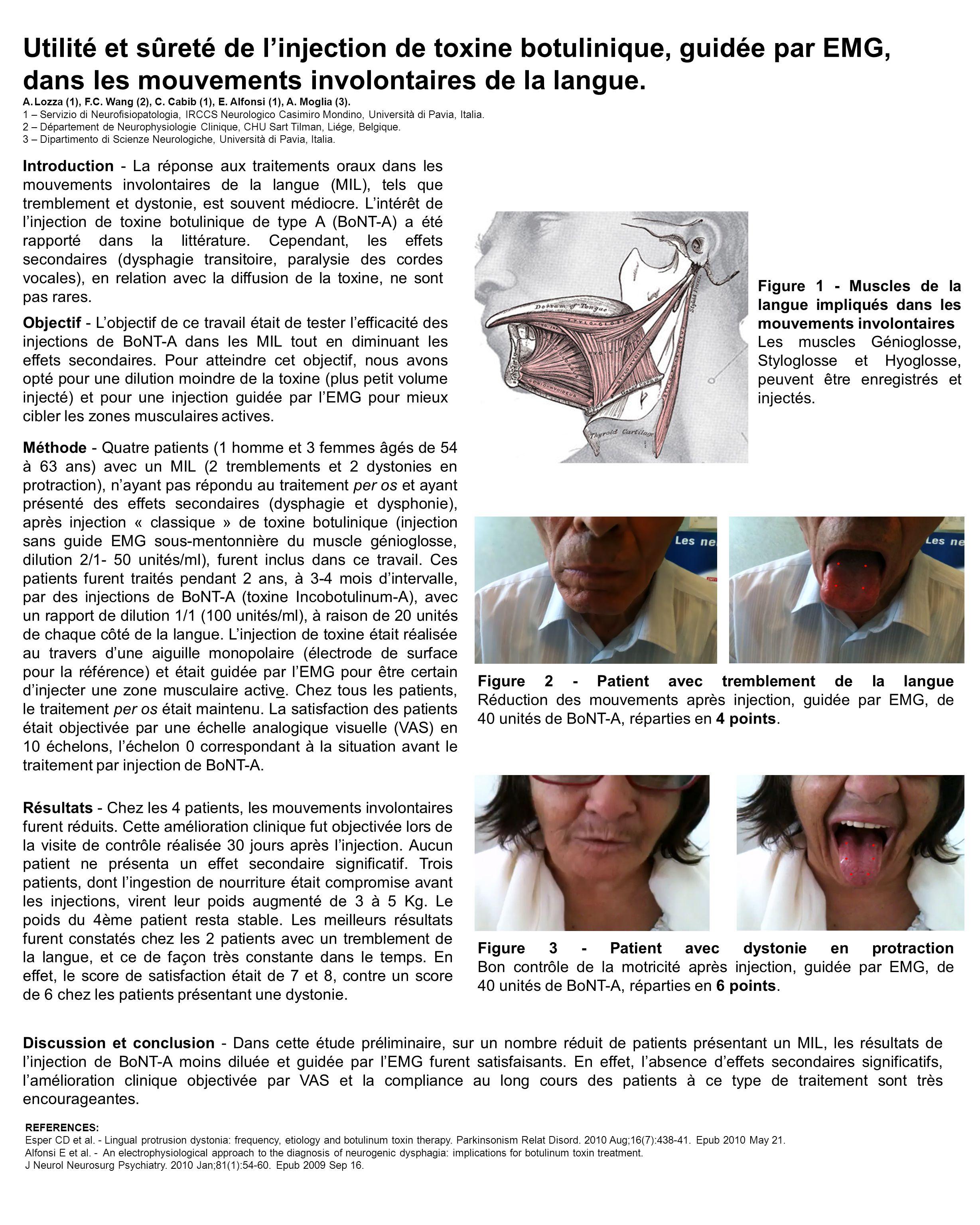 Utilité et sûreté de l'injection de toxine botulinique, guidée par EMG, dans les mouvements involontaires de la langue. A.Lozza (1), F.C. Wang (2), C.