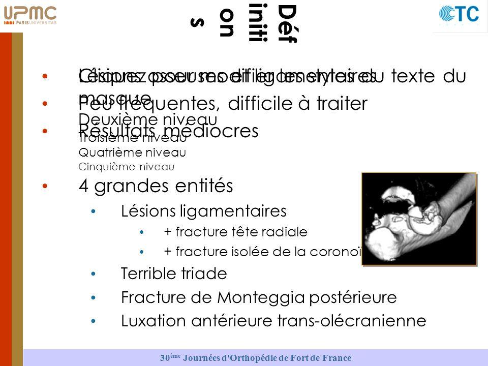 30 ème Journées d Orthopédie de Fort de France Cliquez pour modifier les styles du texte du masque Deuxième niveau Troisième niveau Quatrième niveau Cinquième niveau Déf initi on s Lésions osseuses et ligamentaires Peu fréquentes, difficile à traiter Résultats médiocres 4 grandes entités Lésions ligamentaires + fracture tête radiale + fracture isolée de la coronoïde Terrible triade Fracture de Monteggia postérieure Luxation antérieure trans-olécranienne