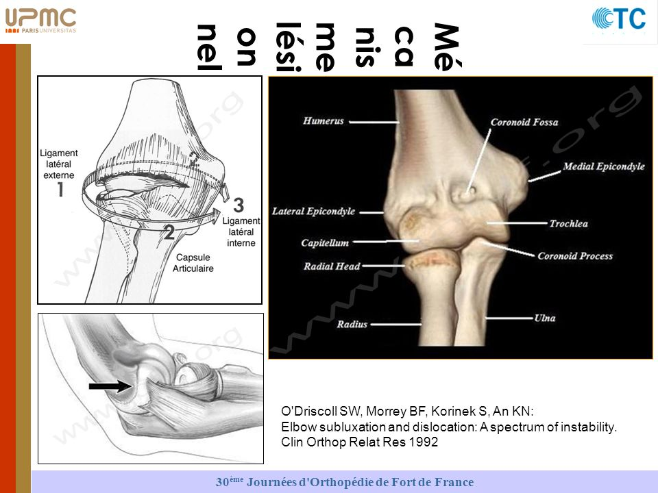 Mé ca nis me lési on nel O Driscoll SW, Morrey BF, Korinek S, An KN: Elbow subluxation and dislocation: A spectrum of instability.