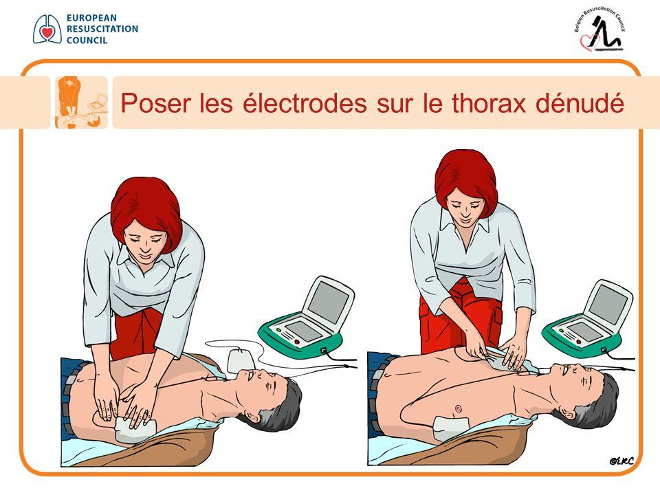 Poser les électrodes sur le thorax dénudé