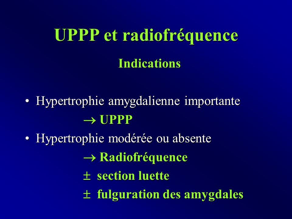 UPPP et radiofréquence Indications Hypertrophie amygdalienne importanteHypertrophie amygdalienne importante  UPPP Hypertrophie modérée ou absenteHypertrophie modérée ou absente  Radiofréquence  Radiofréquence  section luette  fulguration des amygdales