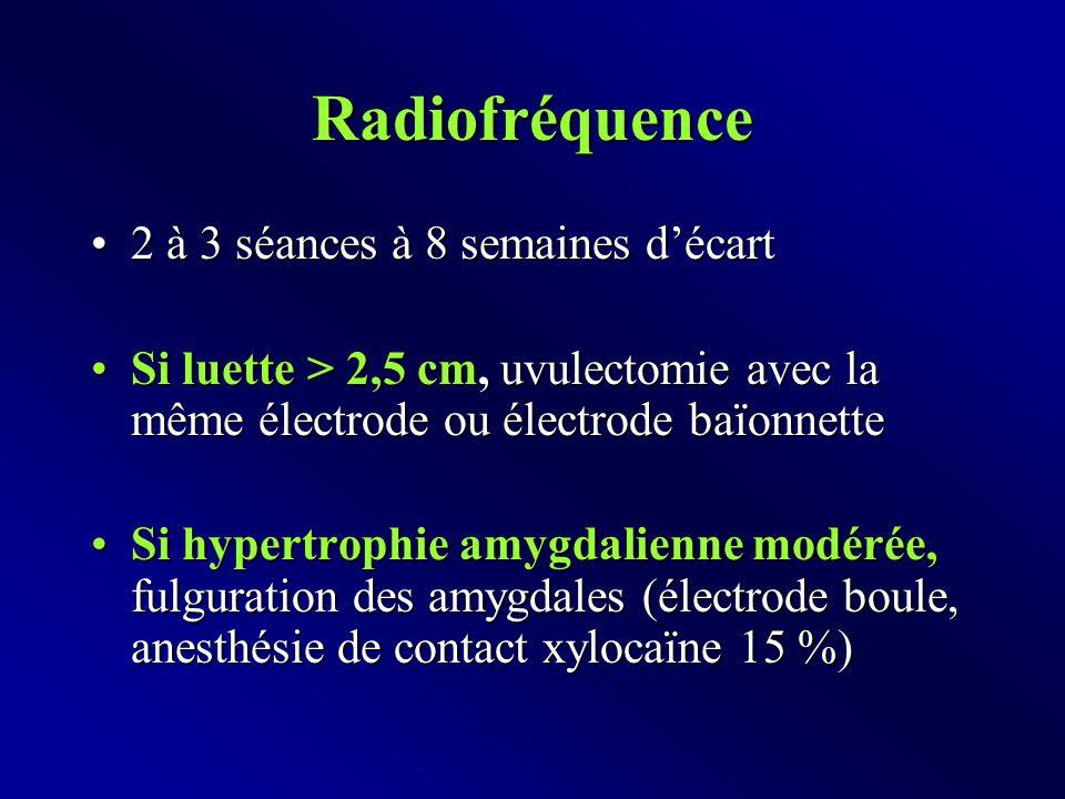 Radiofréquence 2 à 3 séances à 8 semaines d'écart2 à 3 séances à 8 semaines d'écart Si luette > 2,5 cm, uvulectomie avec la même électrode ou électrode baïonnetteSi luette > 2,5 cm, uvulectomie avec la même électrode ou électrode baïonnette Si hypertrophie amygdalienne modérée, fulguration des amygdales (électrode boule, anesthésie de contact xylocaïne 15 %)Si hypertrophie amygdalienne modérée, fulguration des amygdales (électrode boule, anesthésie de contact xylocaïne 15 %)