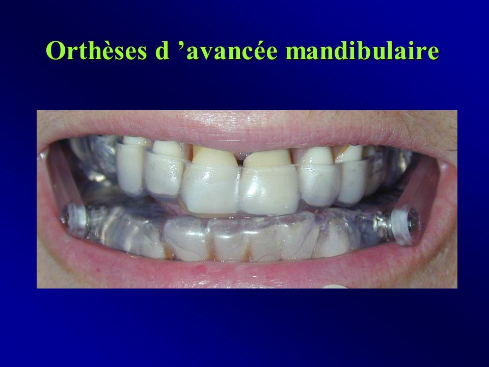 Orthèses d 'avancée mandibulaire