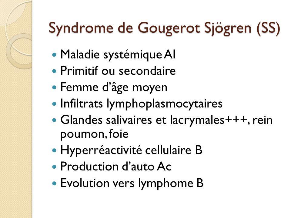 Syndrome de Gougerot Sjögren (SS) Maladie systémique AI Primitif ou secondaire Femme d'âge moyen Infiltrats lymphoplasmocytaires Glandes salivaires et