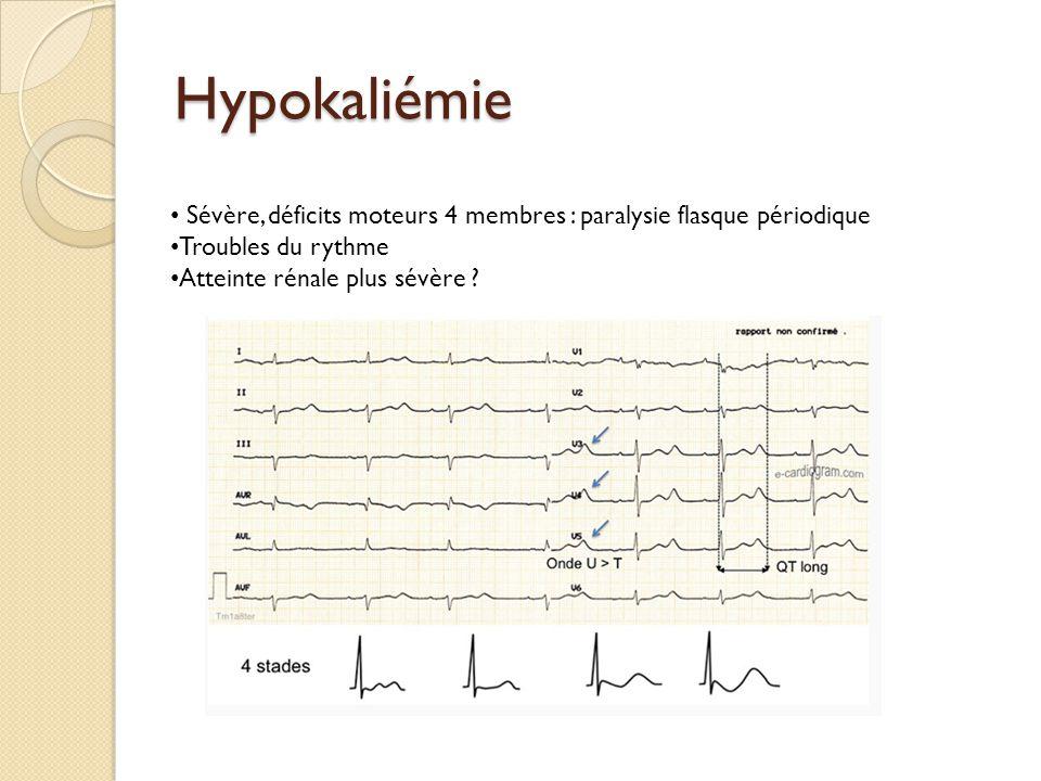 Hypokaliémie Sévère, déficits moteurs 4 membres : paralysie flasque périodique Troubles du rythme Atteinte rénale plus sévère