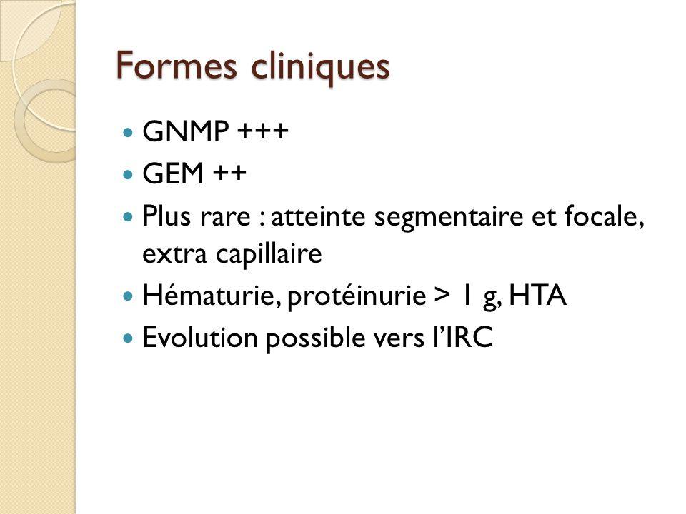 Formes cliniques GNMP +++ GEM ++ Plus rare : atteinte segmentaire et focale, extra capillaire Hématurie, protéinurie > 1 g, HTA Evolution possible ver