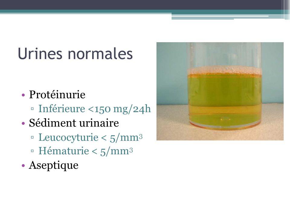Hématurie Maladie néphrologique Maladie urologique