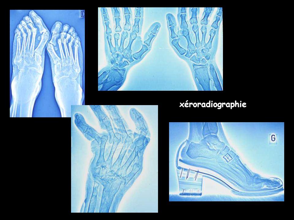 xéroradiographie