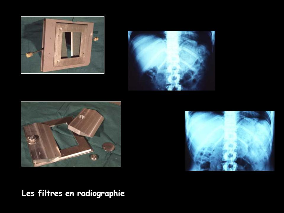 Les filtres en radiographie
