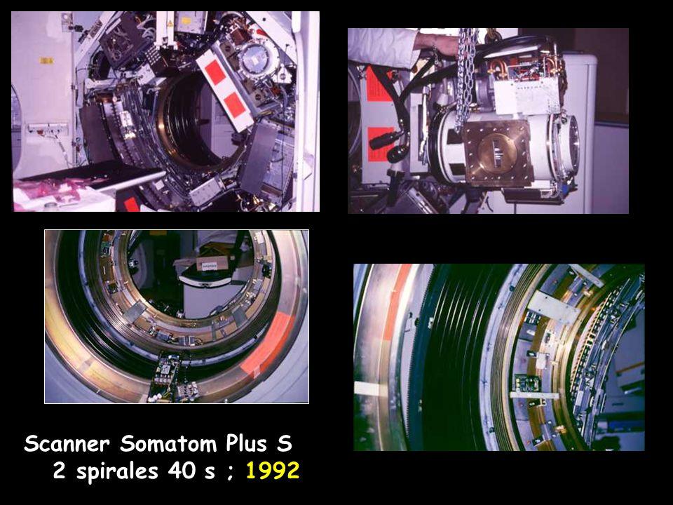 Scanner Somatom Plus S 2 spirales 40 s ; 1992
