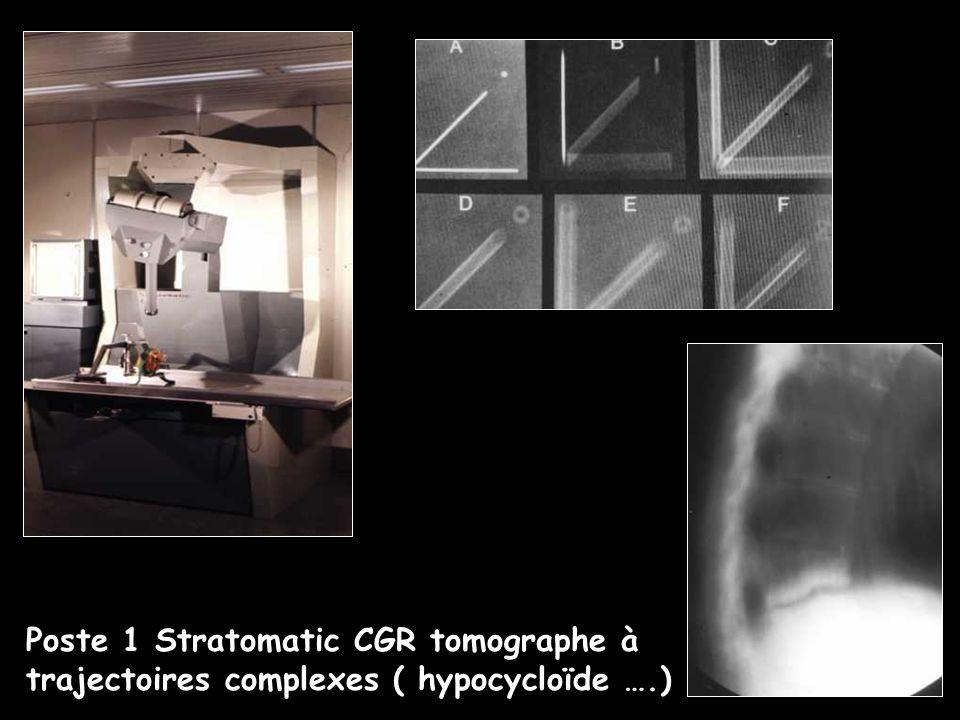 Premiers échographes en milieu radiologique 1980-1985