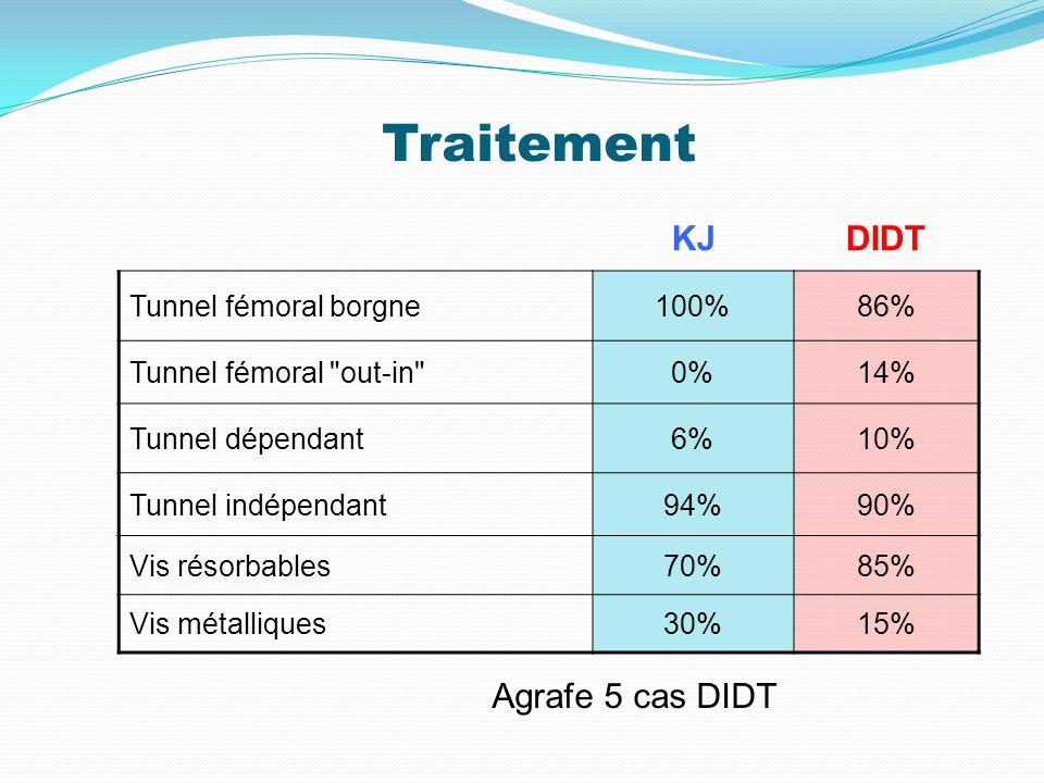 Traitement KJDIDT Tunnel fémoral borgne100%86% Tunnel fémoral out-in 0%14% Tunnel dépendant6%10% Tunnel indépendant94%90% Vis résorbables70%85% Vis métalliques30%15% Agrafe 5 cas DIDT