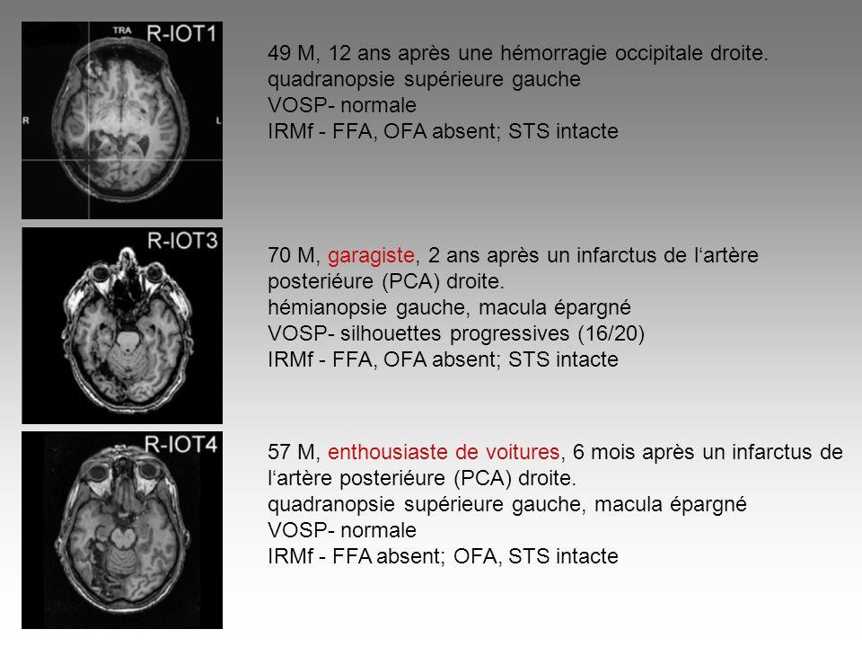 49 M, 12 ans après une hémorragie occipitale droite. quadranopsie supérieure gauche VOSP- normale IRMf - FFA, OFA absent; STS intacte 70 M, garagiste,