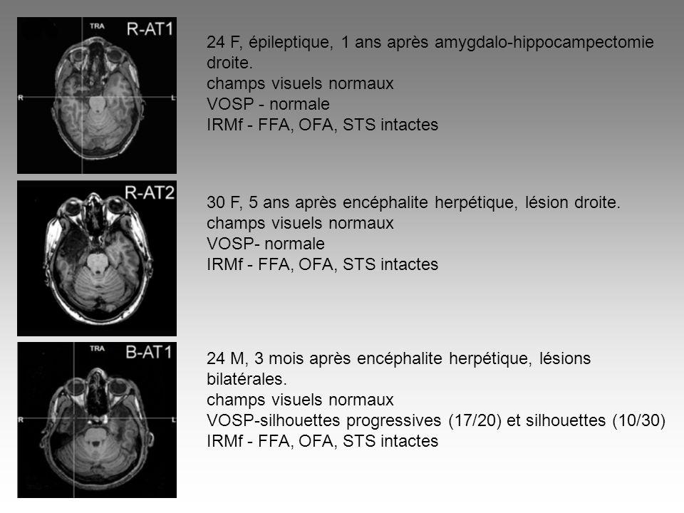 24 F, épileptique, 1 ans après amygdalo-hippocampectomie droite. champs visuels normaux VOSP - normale IRMf - FFA, OFA, STS intactes 30 F, 5 ans après
