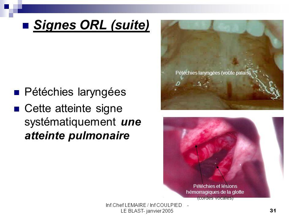 Inf.Chef LEMAIRE / Inf COULPIED - LE BLAST- janvier 200531 Signes ORL (suite) Pétéchies laryngées Cette atteinte signe systématiquement une atteinte p