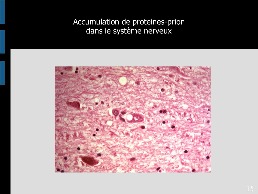 Accumulation de proteines-prion dans le système nerveux 15