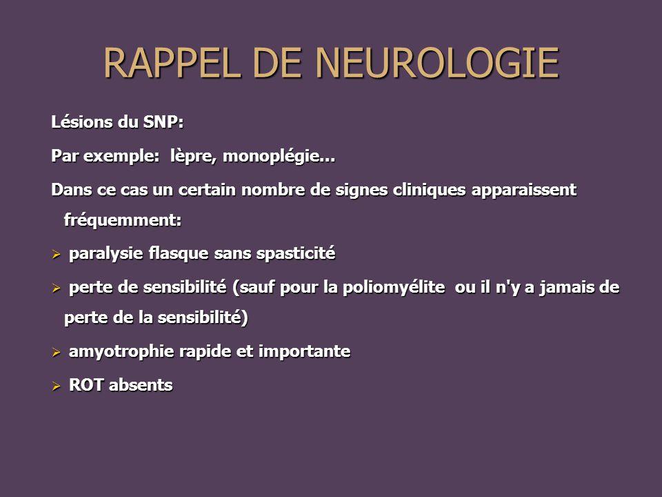 Lésions du SNP: Par exemple: lèpre, monoplégie...