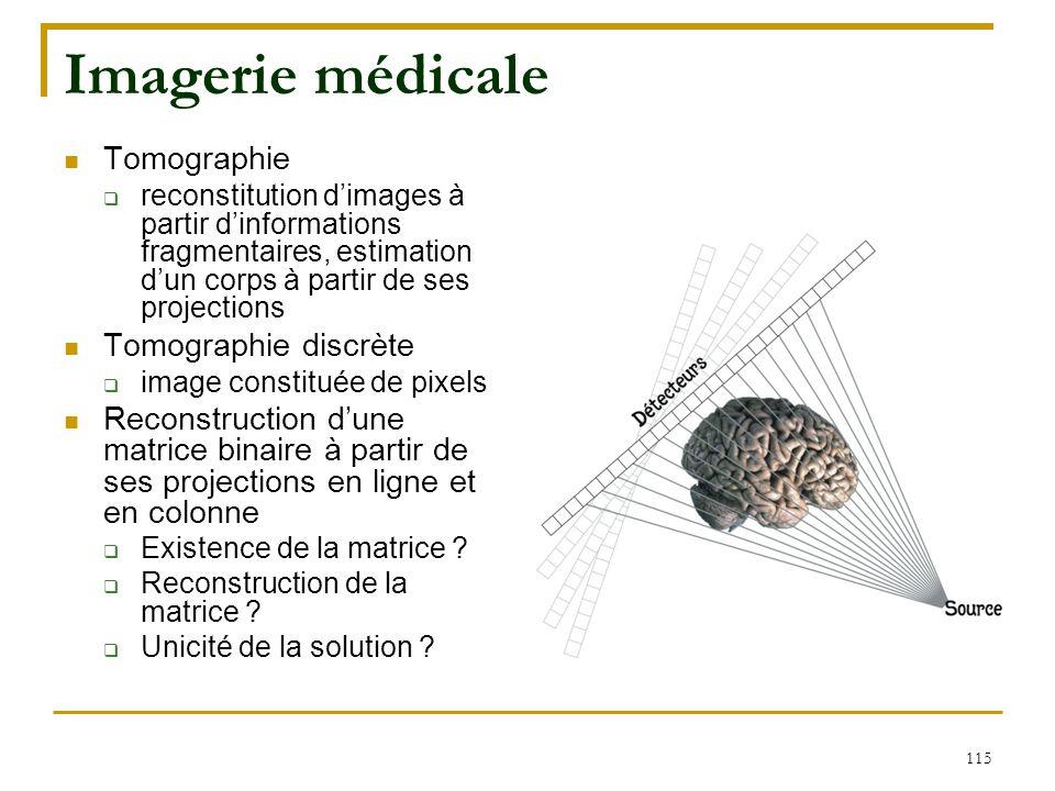 115 Imagerie médicale Tomographie  reconstitution d'images à partir d'informations fragmentaires, estimation d'un corps à partir de ses projections T