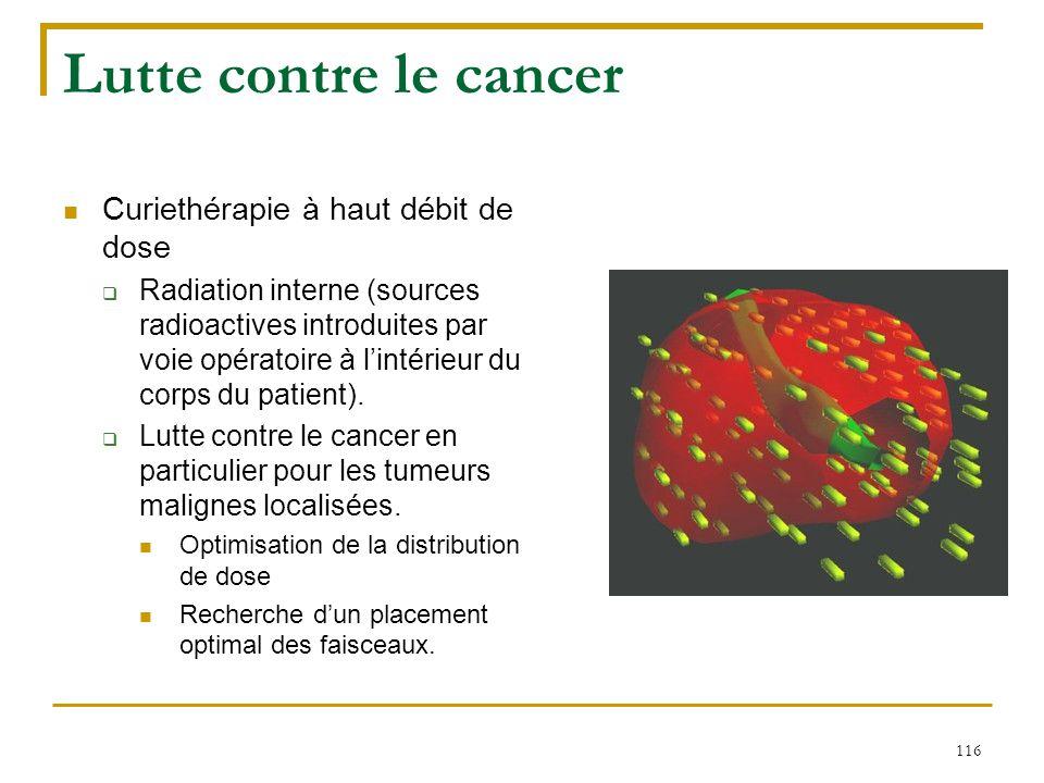 116 Lutte contre le cancer Curiethérapie à haut débit de dose  Radiation interne (sources radioactives introduites par voie opératoire à l'intérieur