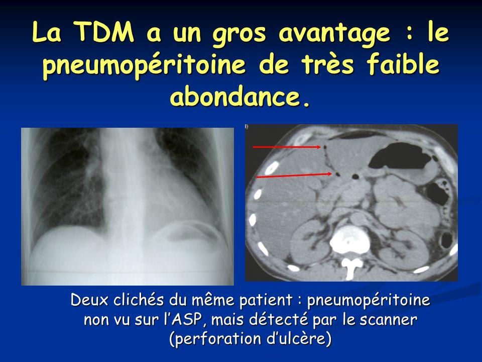 La TDM a un gros avantage : le pneumopéritoine de très faible abondance.