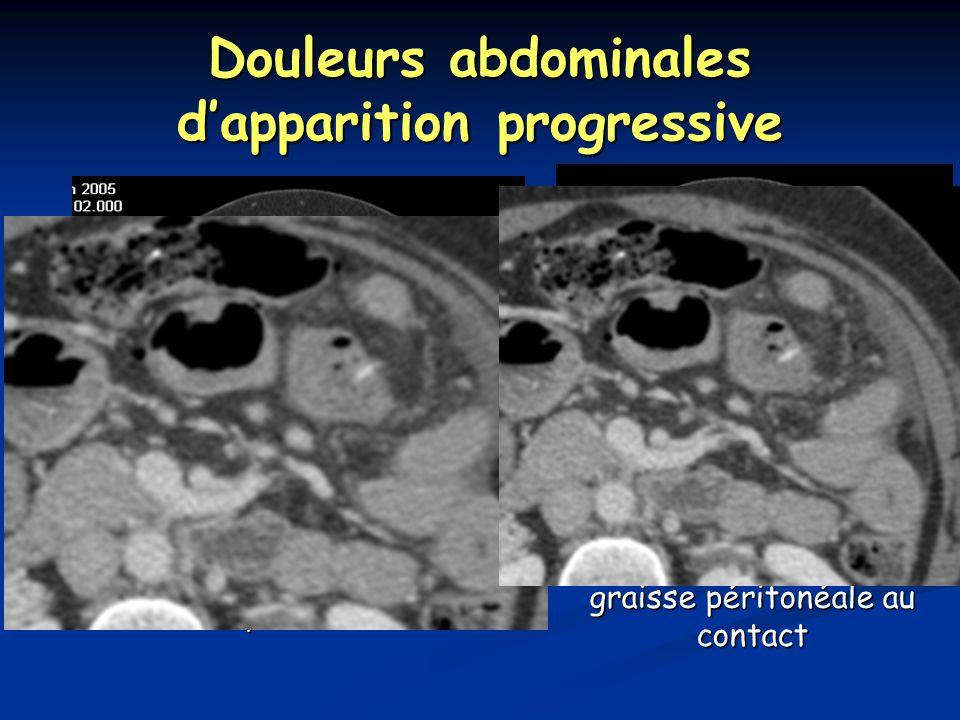 Douleurs abdominales d'apparition progressive Densification de la graisse péritonéale au contact Perforation du grêle par un os de poulet